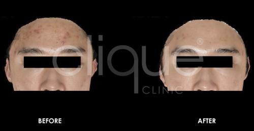 Acne_Tixel_Clique_Clinic