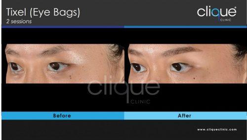 Tixel_eyebags_cliqueclinic
