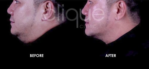 Ultherapy Radiesse for double chin face lift