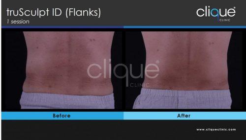 truSculptid_flank_clique_clinic